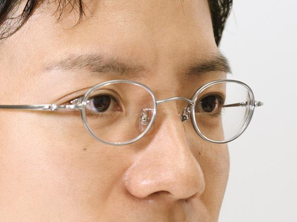 SMART FIT Styles SF-8003M(レンズサイズ43ミリ、度数S-8.00)では、顔の輪郭のへこみが目立ちにくくなる。