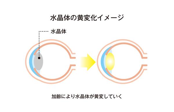 水晶体の黄変化イメージ